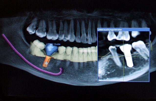 detailbildimplantologie.jpg